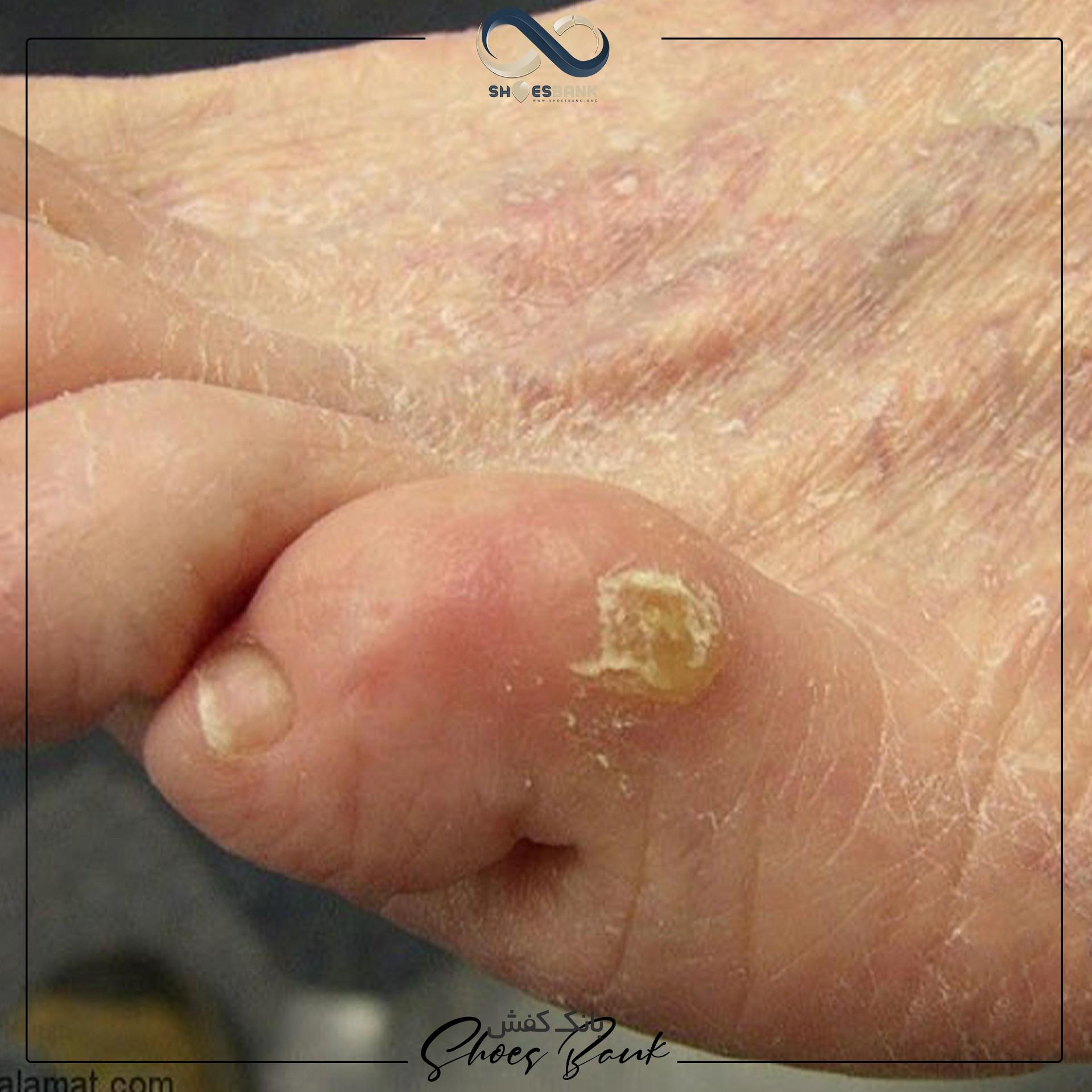 ایجاد میخچه در قسمت ضخیم پوست پا