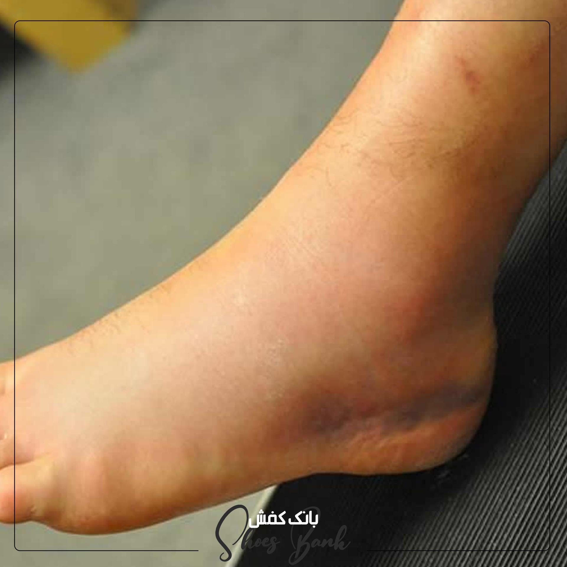 تورم پا از علائم بروز آرتروز است